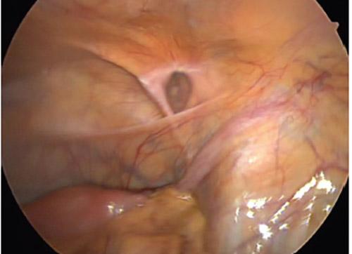 tecnica-laparoscopica